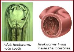 Hookworms - Inside the intestine and showing teeth