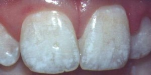 Fluorosis is becoming common in both adults and children