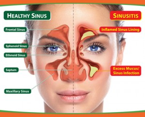 treating-sinusitis